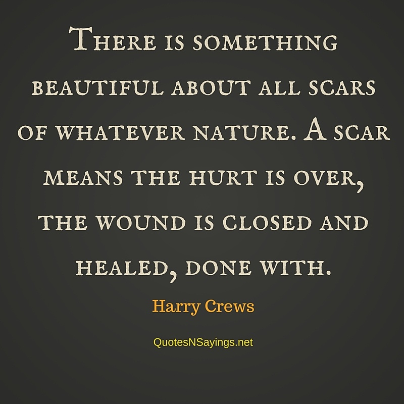 There is something beautiful about all scars of whatever nature. A scar means the hurt is over, the wound is closed and healed, done with - Harry Crews quote
